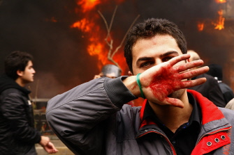 An Iranian opposition supporter covers his face with his bloodstained hand during clashes with security forces in Tehran on December 27, 2009. At least five, perhaps more, protesters were killed in clashes with security forces on the day of Ashura; one of the most important days of the year to Shia muslims.